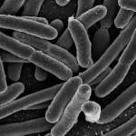 Thermotoga Neapolitana, il batterio che mangia i nostri rifiuti